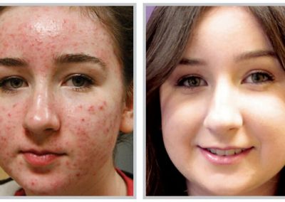 acne-treatment-1024x599